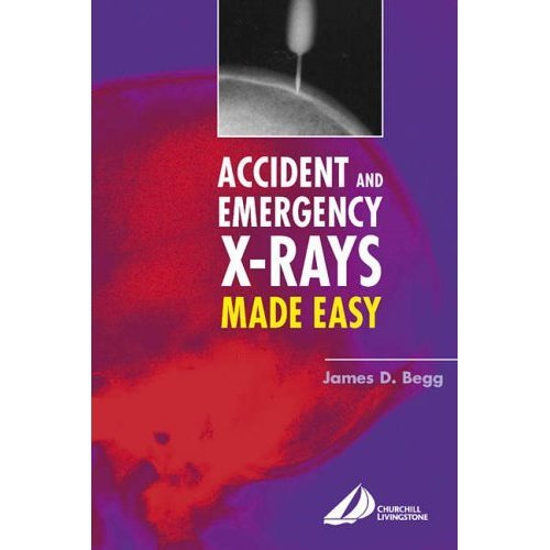 Accident and Emergency X-Rays Made Easy, 1e